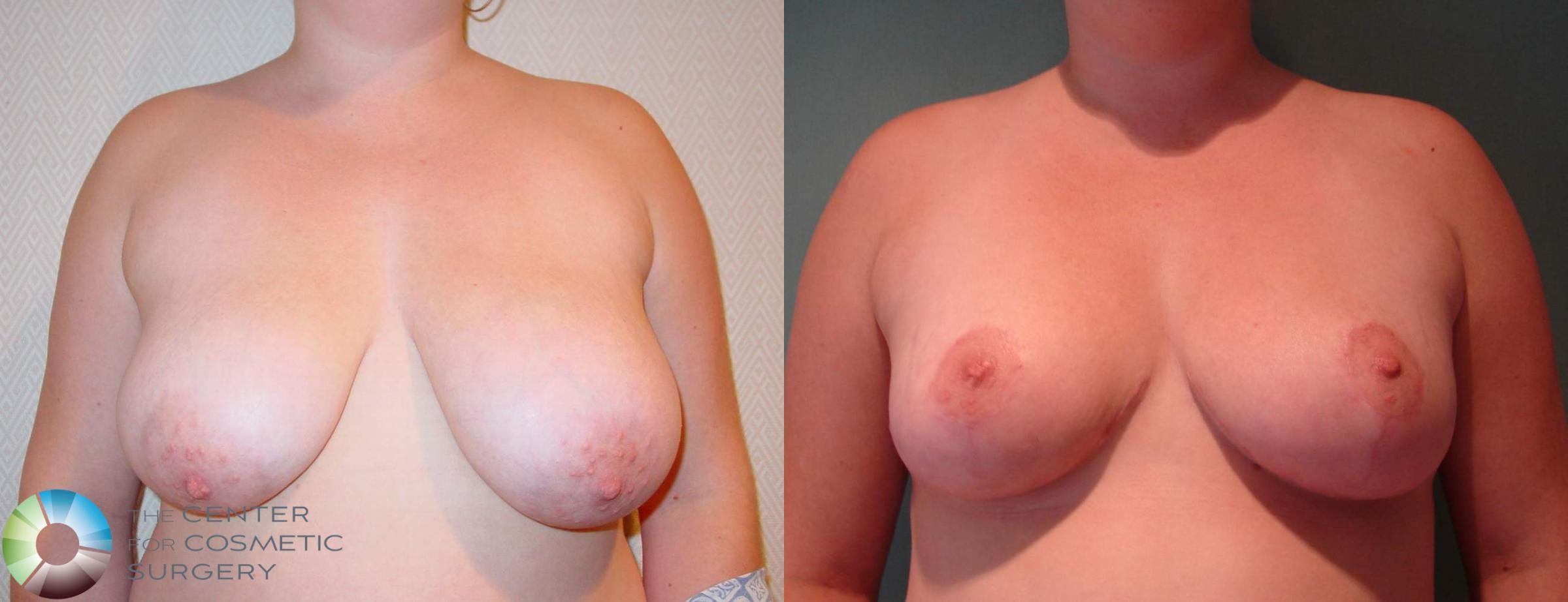 Breast Lift Case 596 Before & After View #1 | Golden, CO | The Center for Cosmetic Surgery