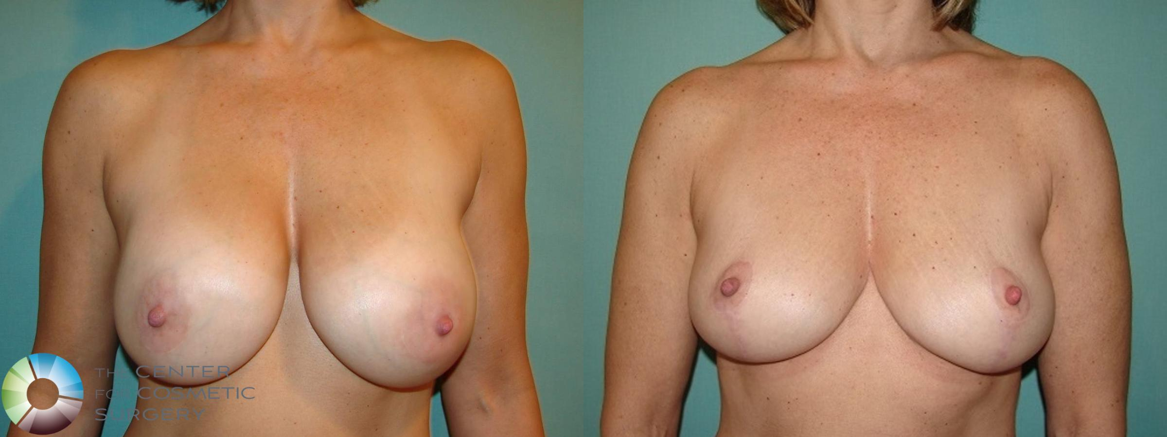 Best Denver Breast Implant Removal Mastopexy
