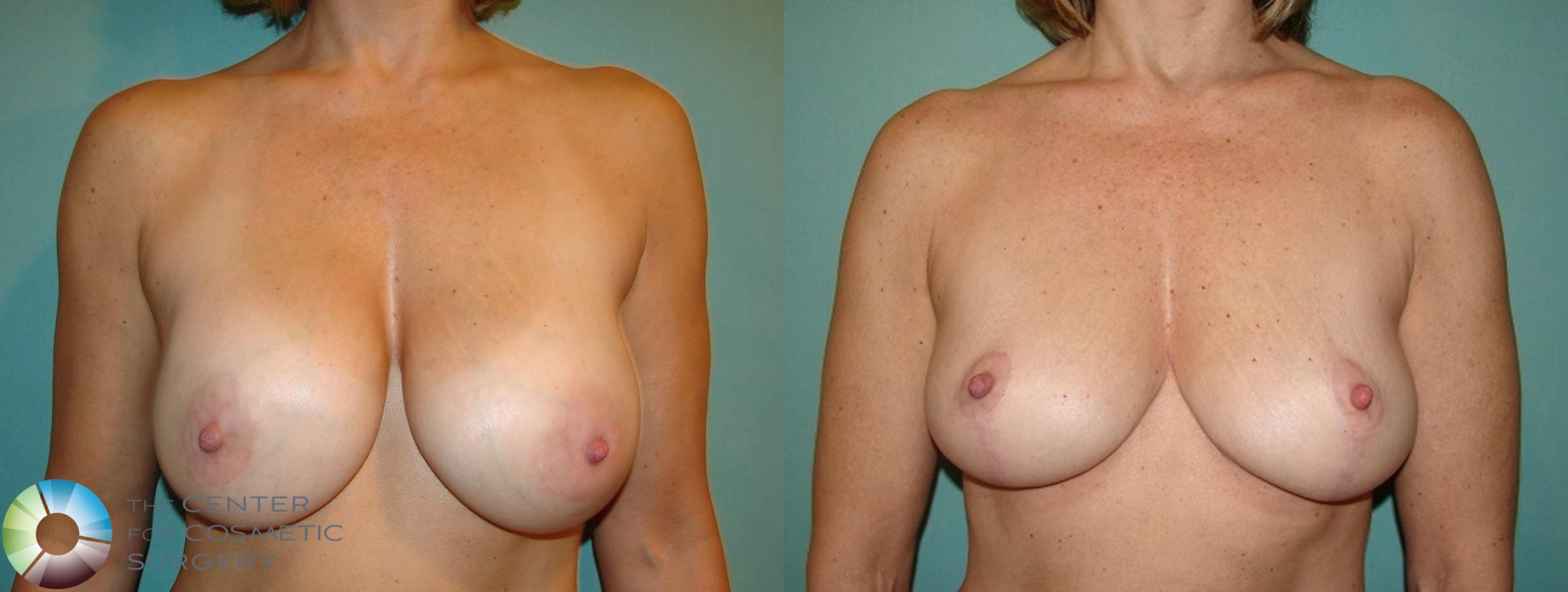 Breast Revision Case 598 Before & After View #1 | Golden, CO | The Center for Cosmetic Surgery