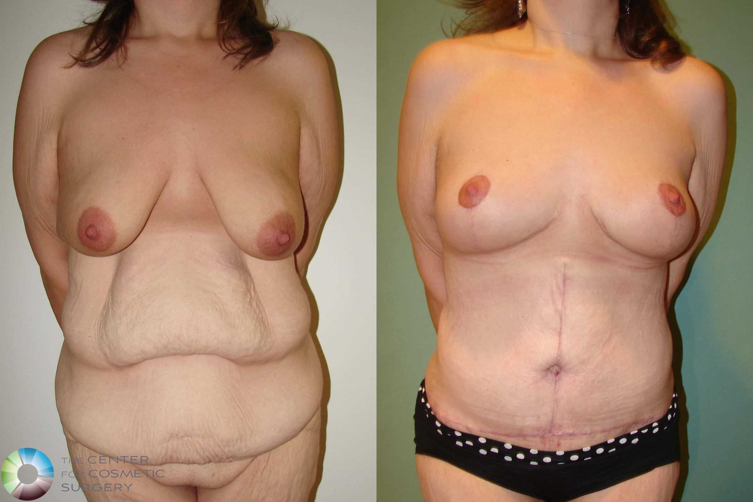 Breast Lift Case 664 Before & After View #1 | Denver & Golden, CO | The Center for Cosmetic Surgery