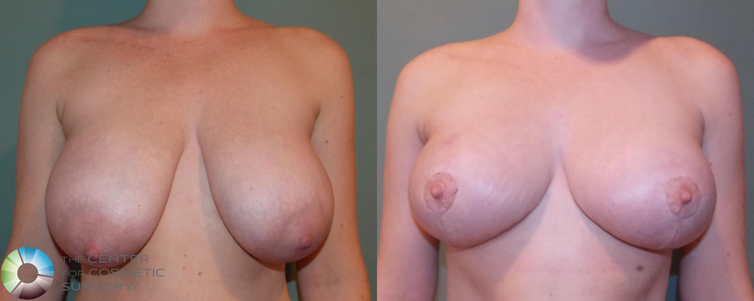 Breast Lift without Implants Case 690 Before & After View #1 | Golden, CO | The Center for Cosmetic Surgery