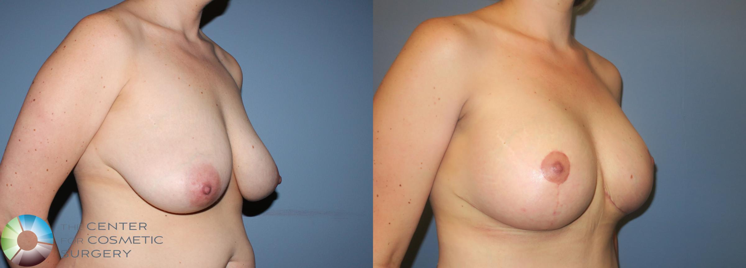Breast Augmentation Case 781 Before & After View #1 | Denver & Golden, CO | The Center for Cosmetic Surgery