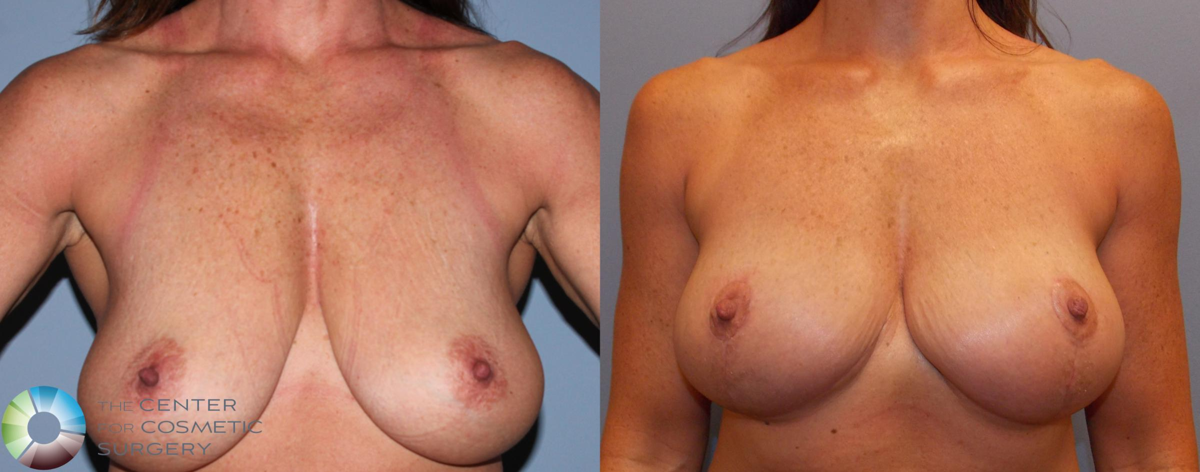 Breast Lift Case 868 Before & After View #1 | Golden, CO | The Center for Cosmetic Surgery