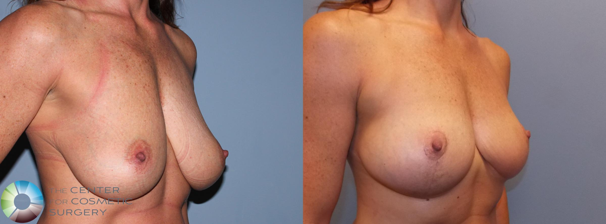 Breast Lift Case 868 Before & After View #3 | Golden, CO | The Center for Cosmetic Surgery