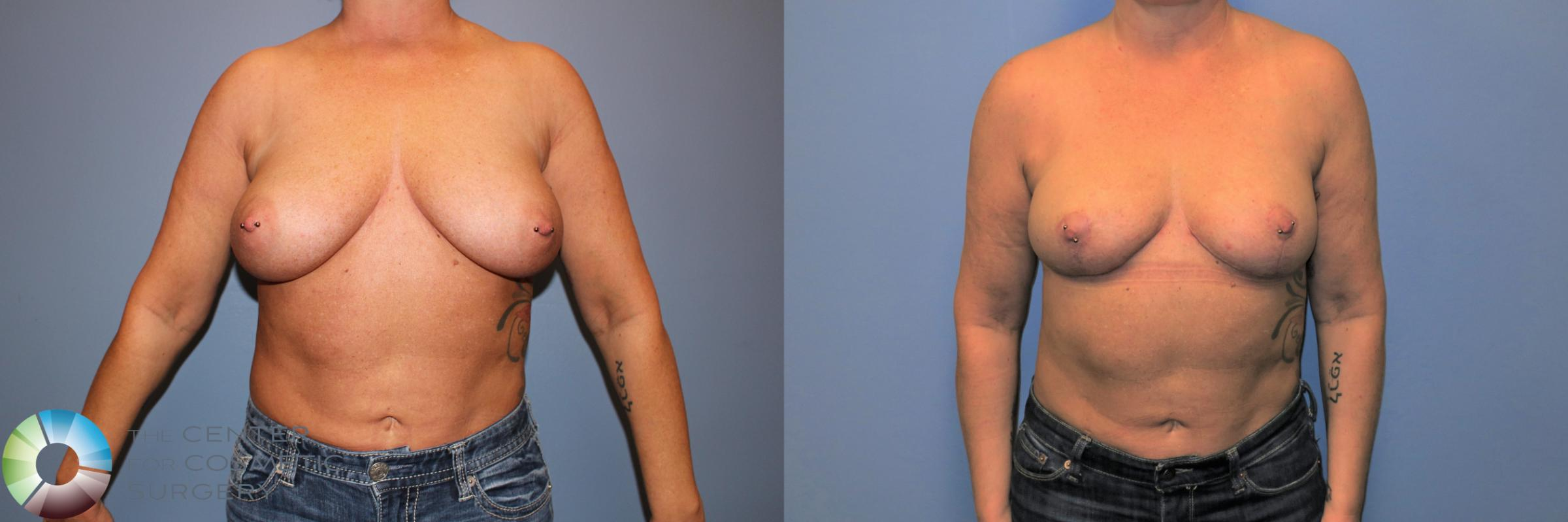 Breast Reduction Case 11235 Before & After Front | Denver & Golden, CO | The Center for Cosmetic Surgery