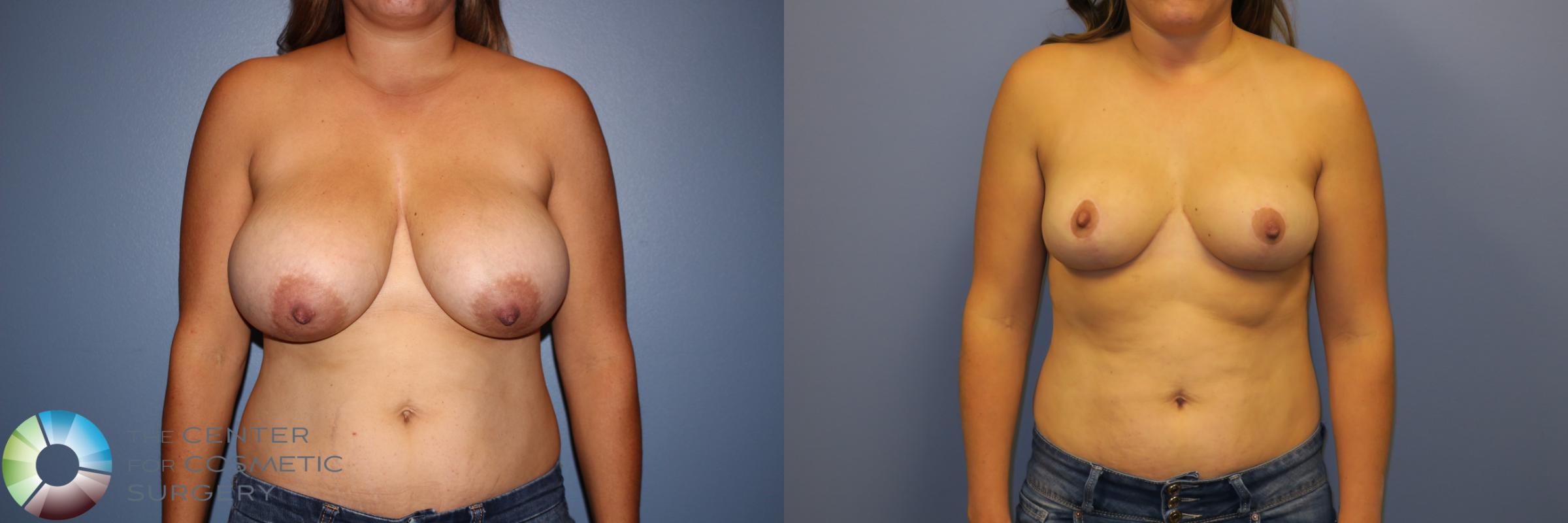 Breast Reduction Case 11262 Before & After Front | Golden, CO | The Center for Cosmetic Surgery