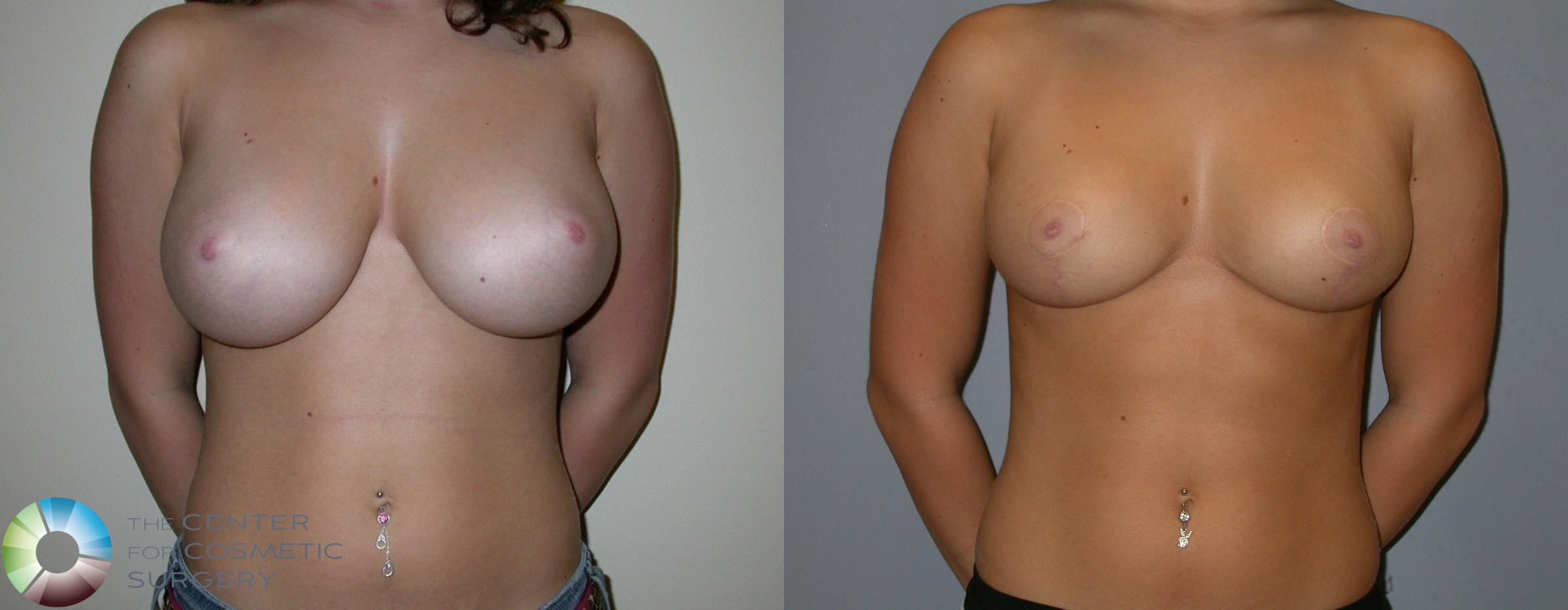 Breast Reduction Case 217 Before & After View #1 | Golden, CO | The Center for Cosmetic Surgery