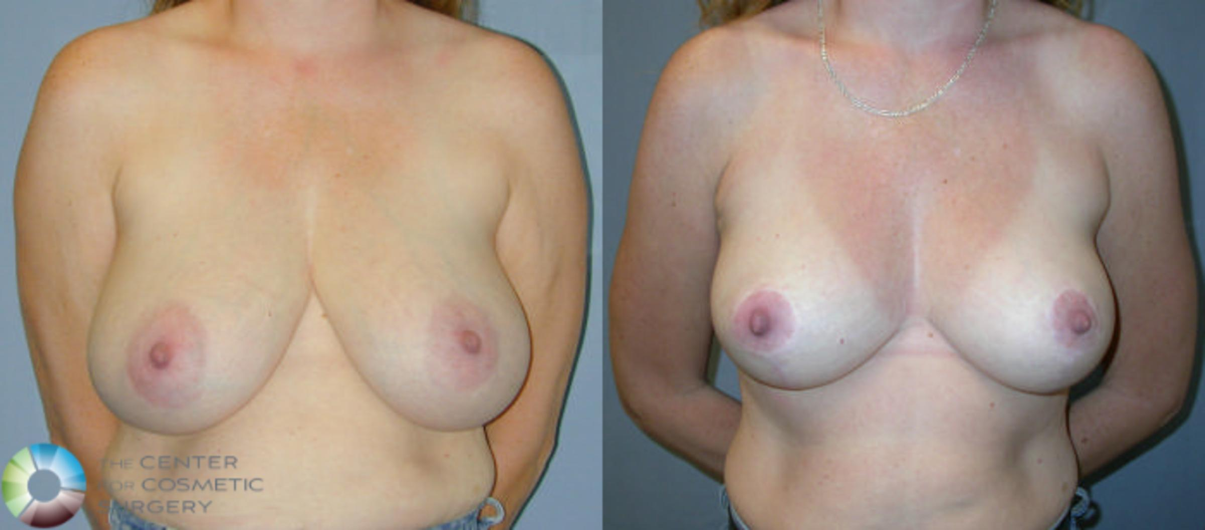 Breast Reduction Case 28 Before & After View #1 | Denver & Golden, CO | The Center for Cosmetic Surgery