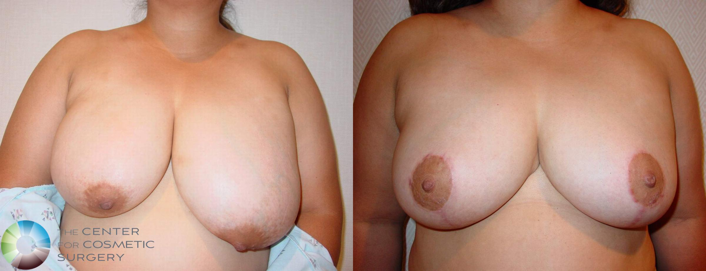 Breast Reduction Case 524 Before & After View #1 | Golden, CO | The Center for Cosmetic Surgery