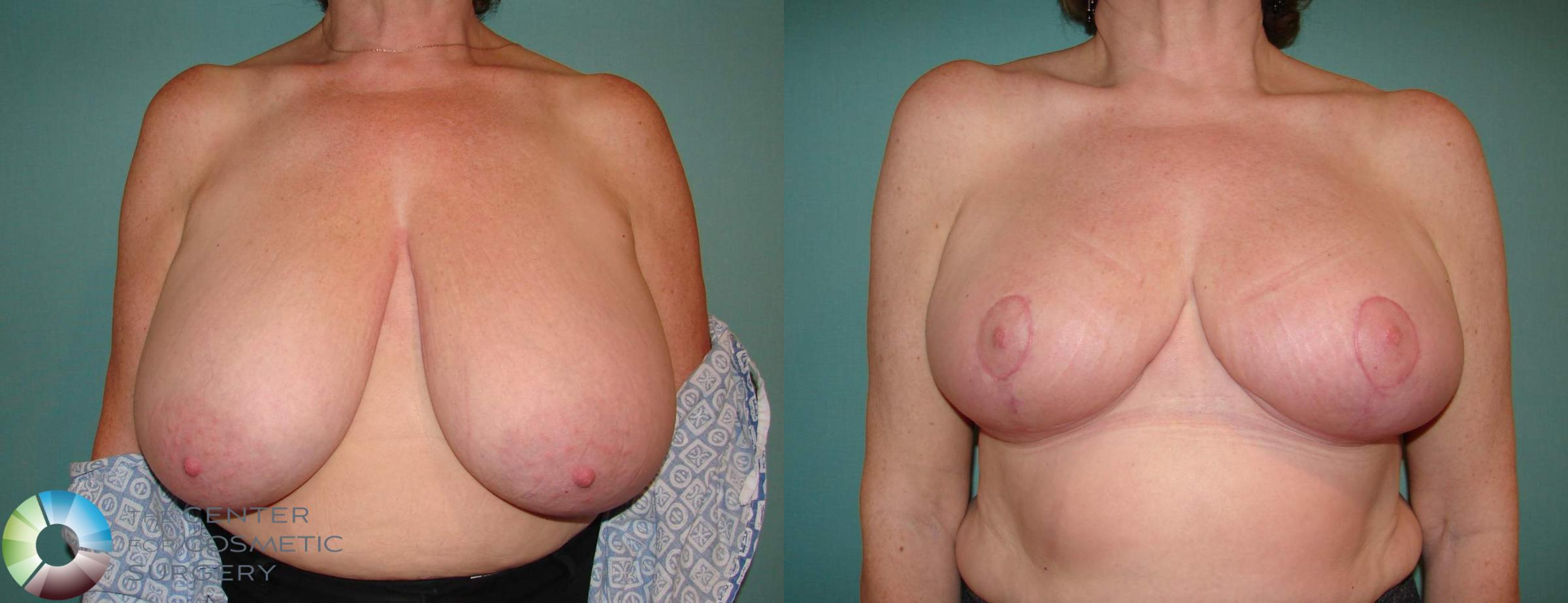 Breast Reduction Case 533 Before & After View #1 | Golden, CO | The Center for Cosmetic Surgery