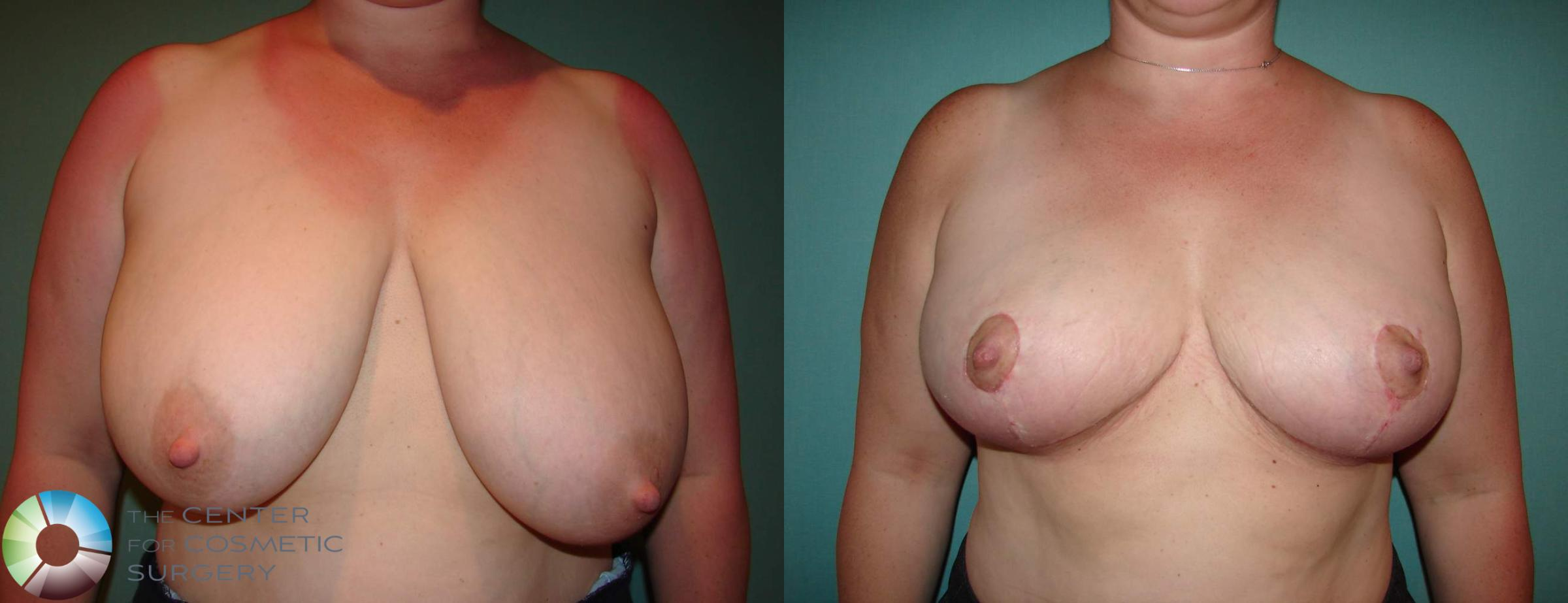 Breast Reduction Case 535 Before & After View #1 | Golden, CO | The Center for Cosmetic Surgery