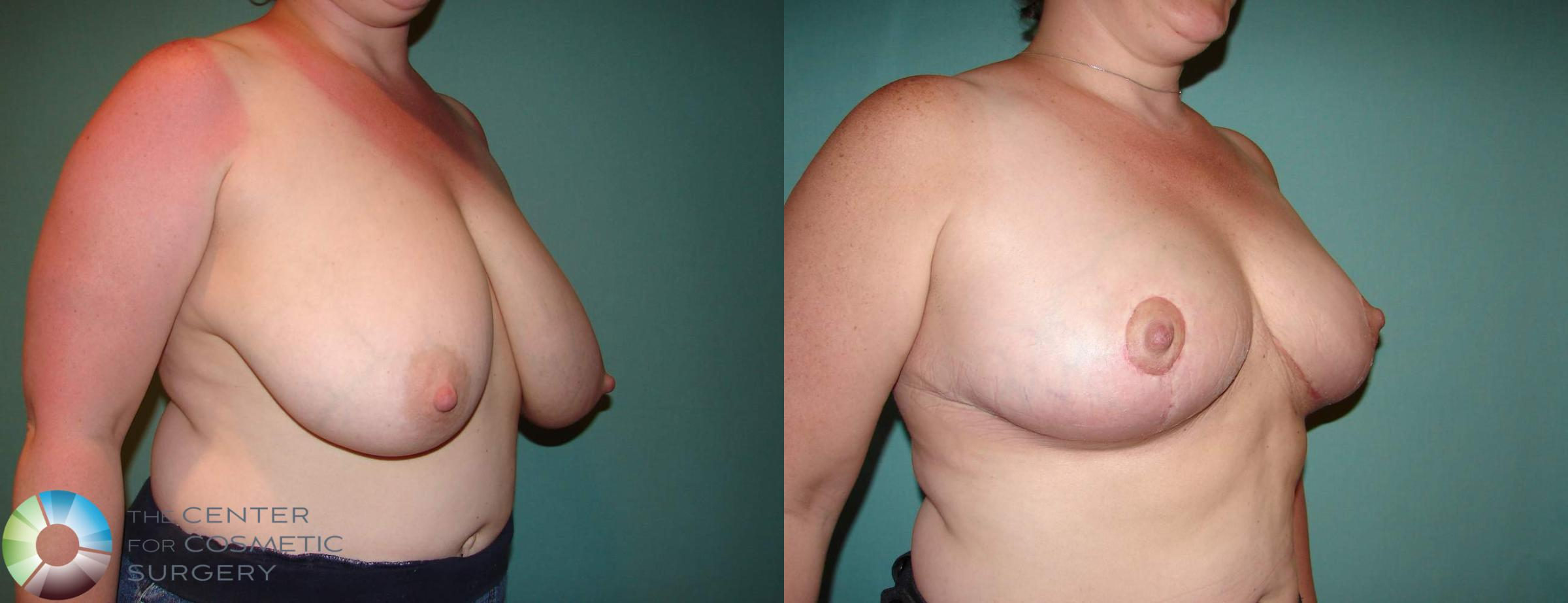 Breast Reduction Case 535 Before & After View #2 | Golden, CO | The Center for Cosmetic Surgery