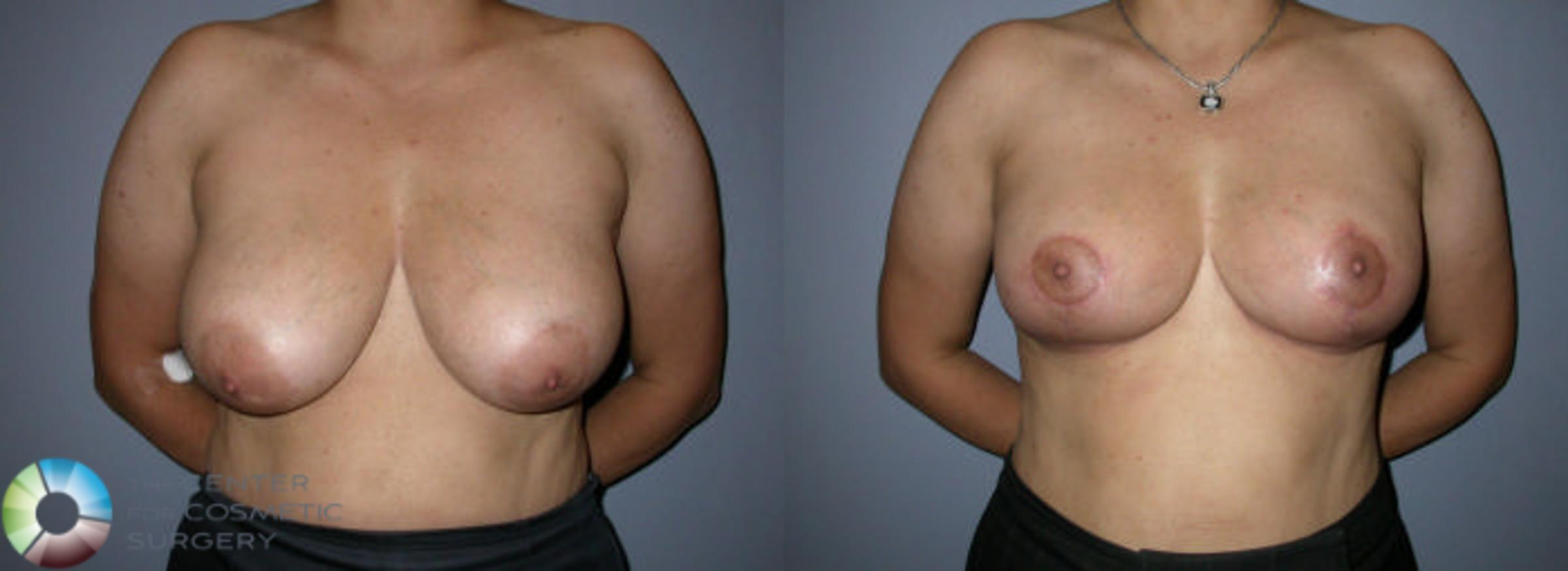Breast Reduction Case 59 Before & After View #1 | Golden, CO | The Center for Cosmetic Surgery