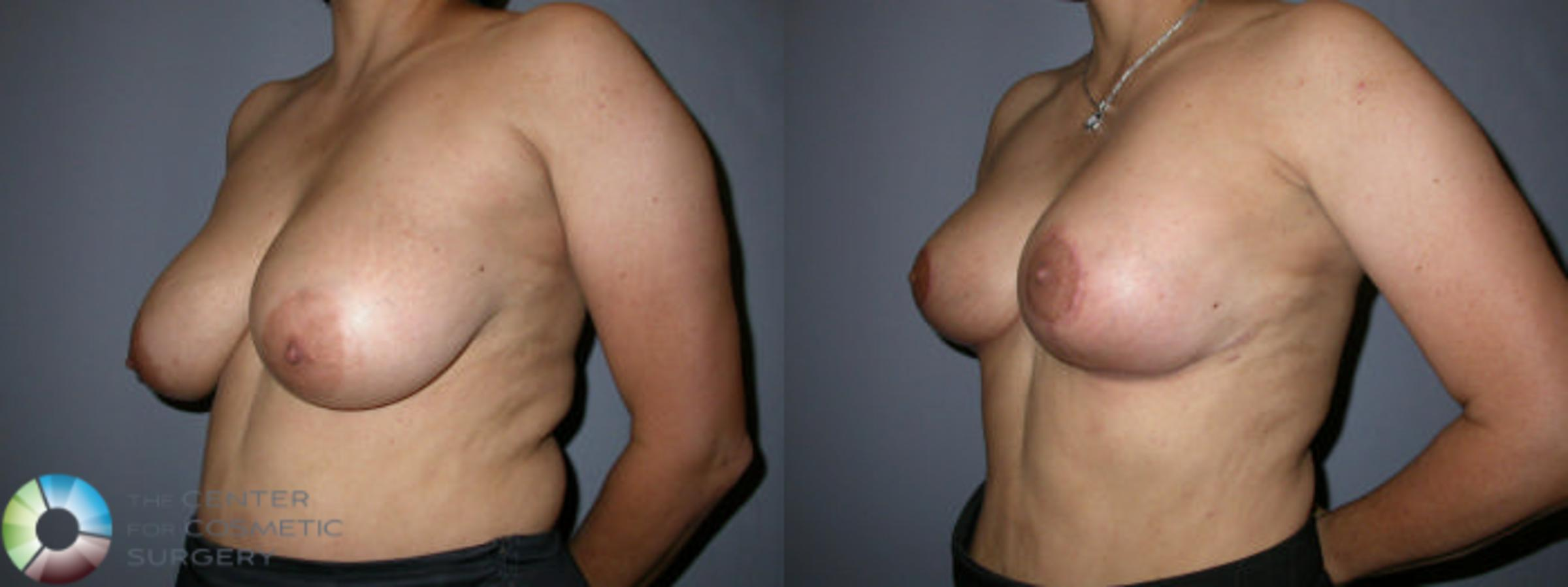 Breast Reduction Case 59 Before & After View #2 | Golden, CO | The Center for Cosmetic Surgery