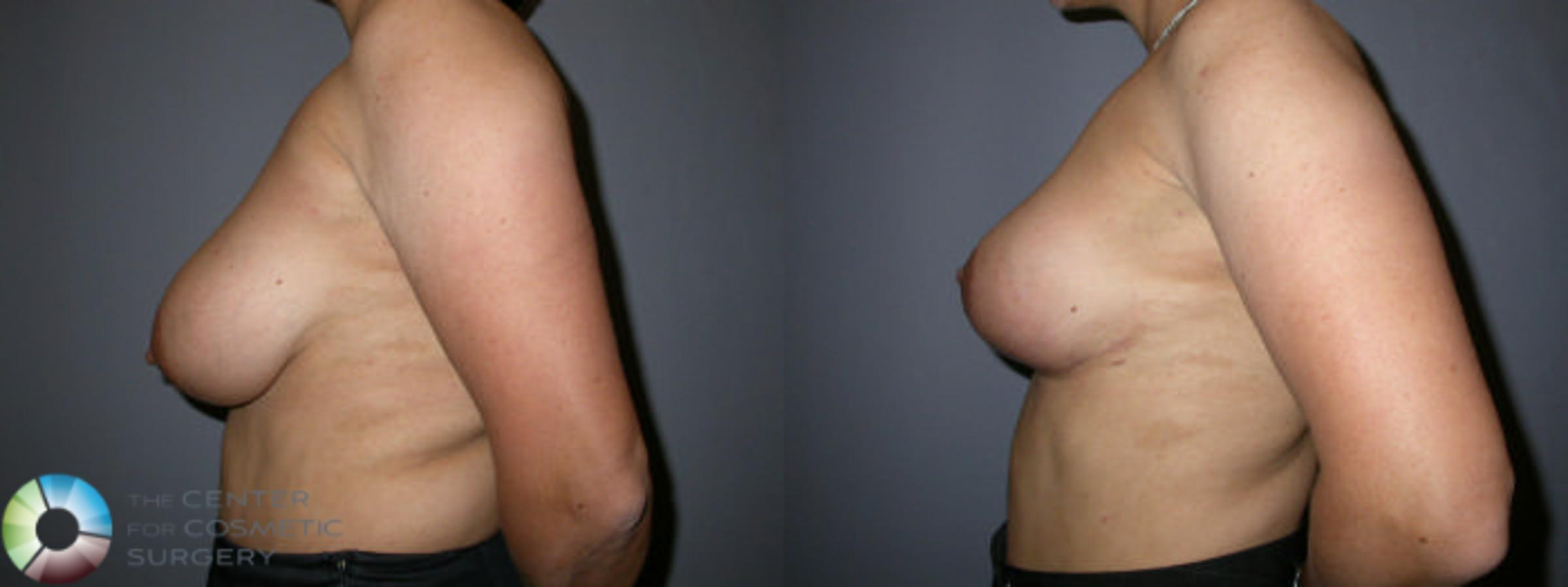 Breast Reduction Case 59 Before & After View #3 | Golden, CO | The Center for Cosmetic Surgery