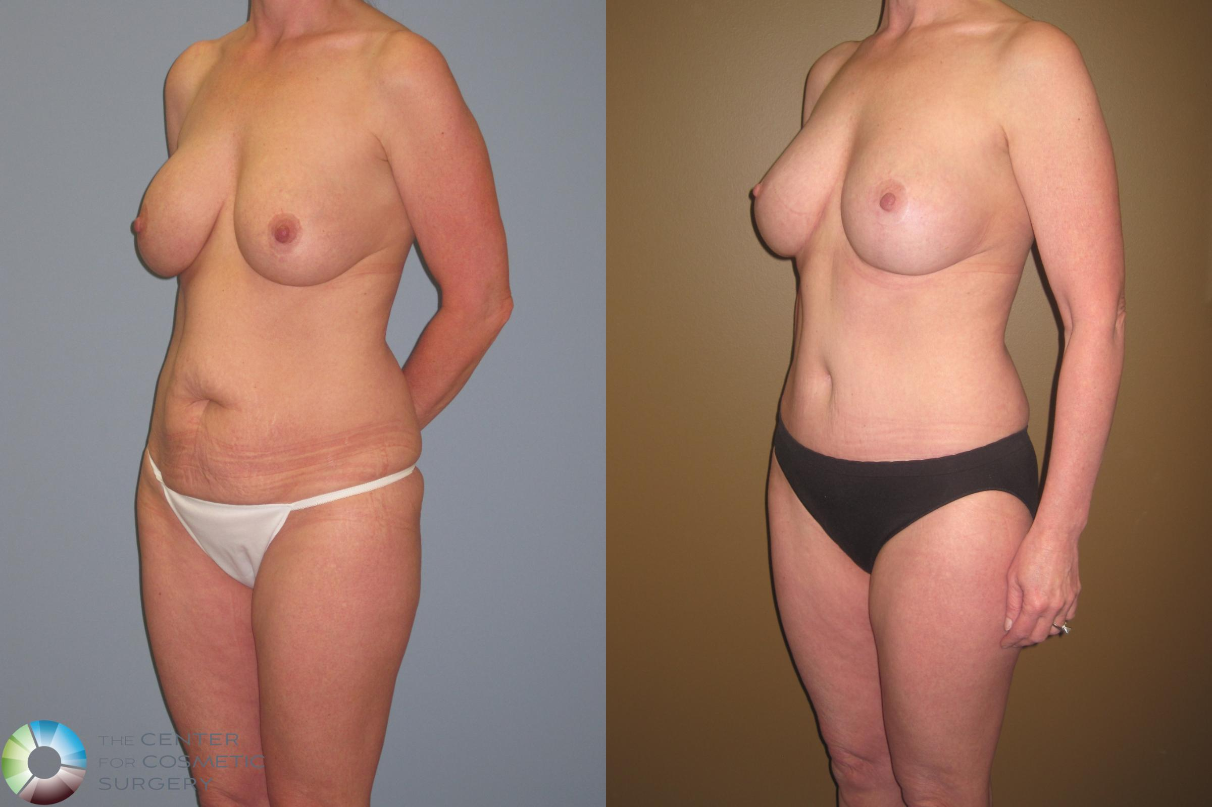 Breast Revision Case 467 Before & After View #1 | Golden, CO | The Center for Cosmetic Surgery
