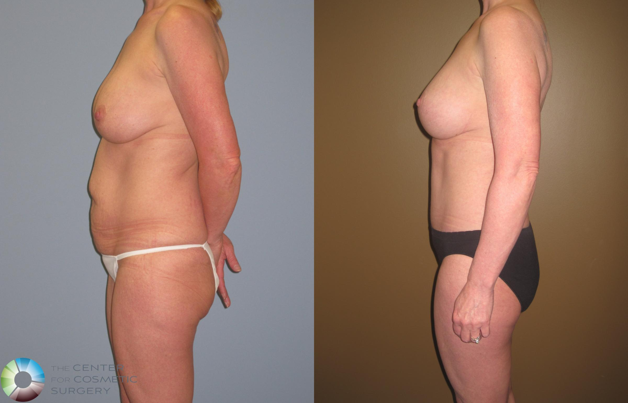 Breast Revision Case 467 Before & After View #2 | Golden, CO | The Center for Cosmetic Surgery