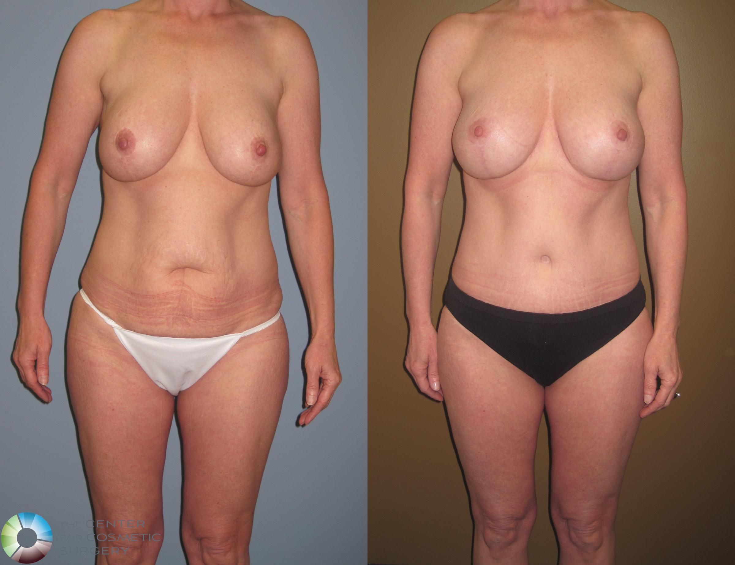 Breast Revision Case 467 Before & After View #3 | Golden, CO | The Center for Cosmetic Surgery