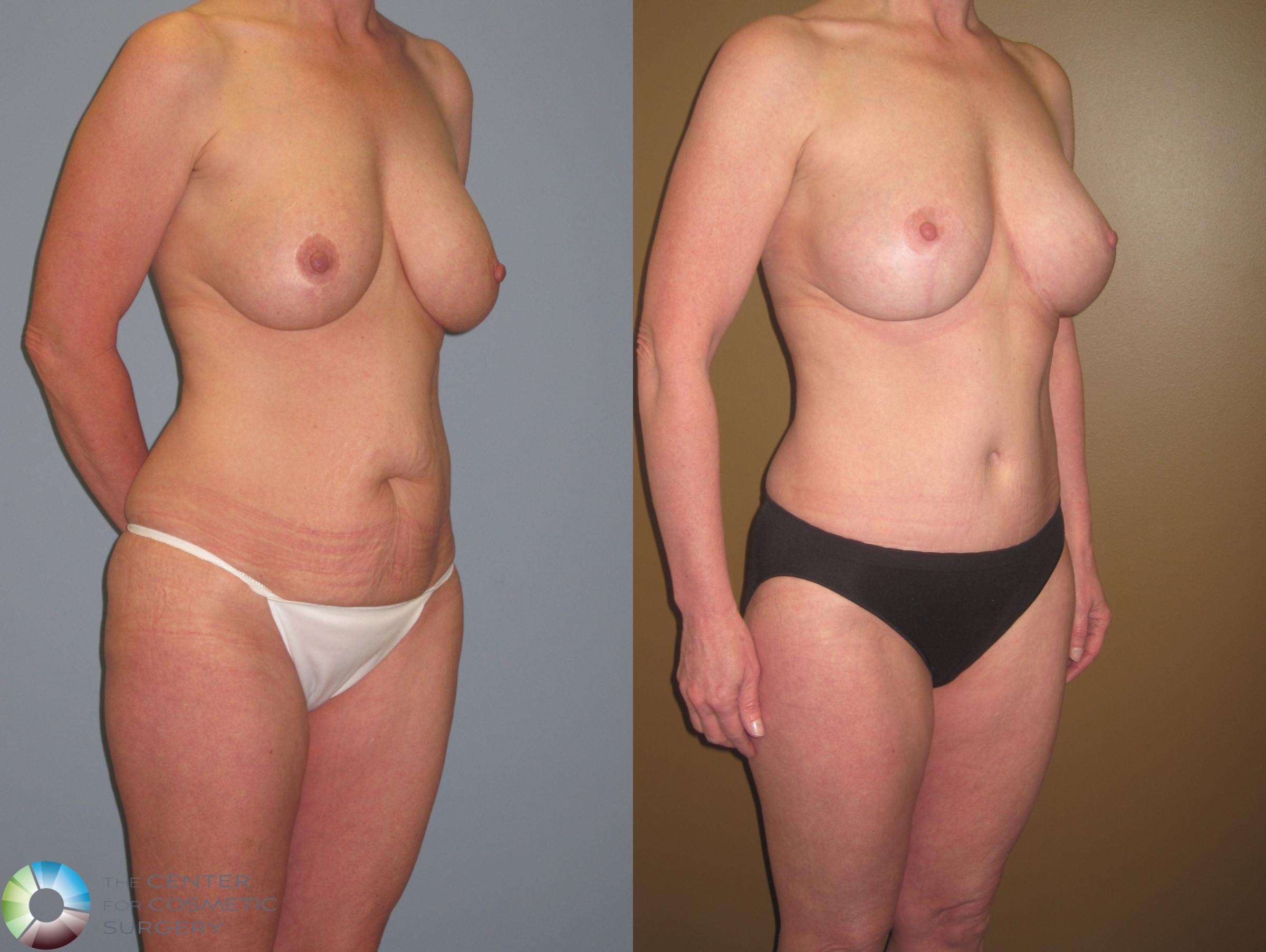 Breast Revision Case 467 Before & After View #4 | Golden, CO | The Center for Cosmetic Surgery