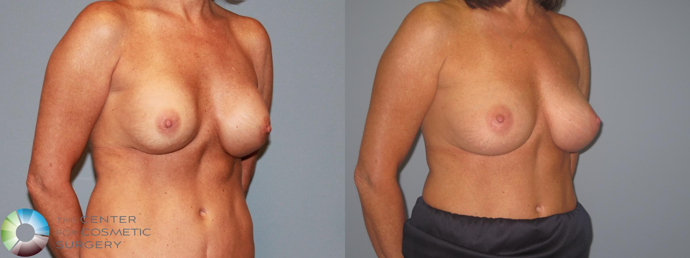 Breast Implant Revision Case 713 Before & After View #1 | Golden, CO | The Center for Cosmetic Surgery