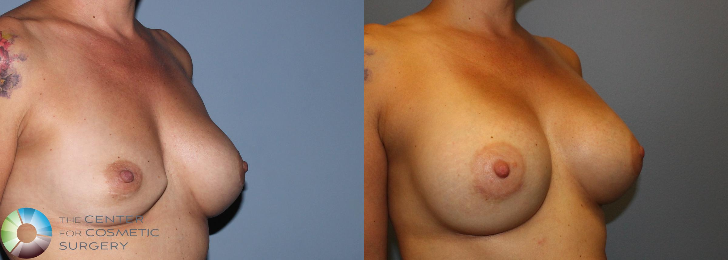 Breast Revision Case 830 Before & After View #2 | Golden, CO | The Center for Cosmetic Surgery