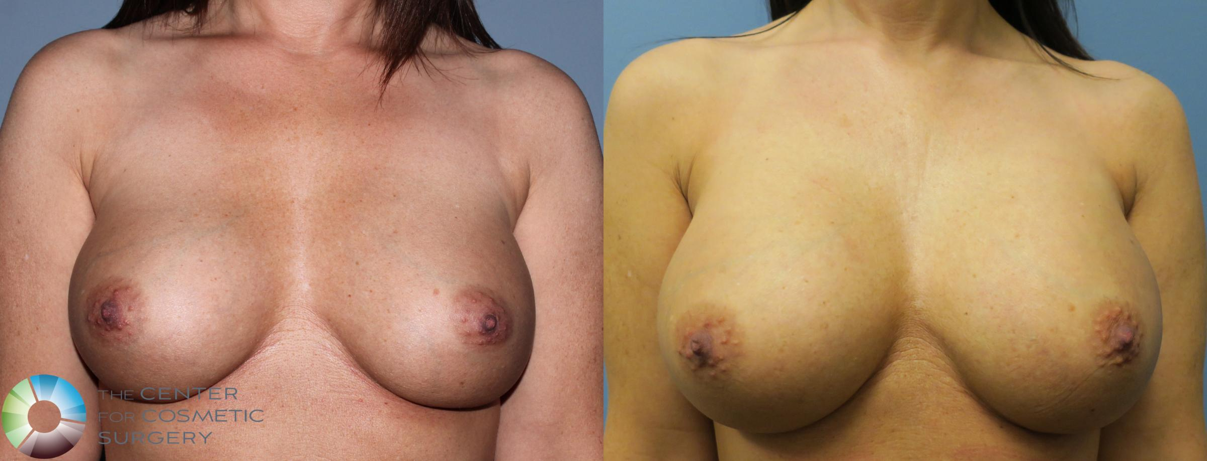 Breast Revision Case 835 Before & After View #1 | Golden, CO | The Center for Cosmetic Surgery