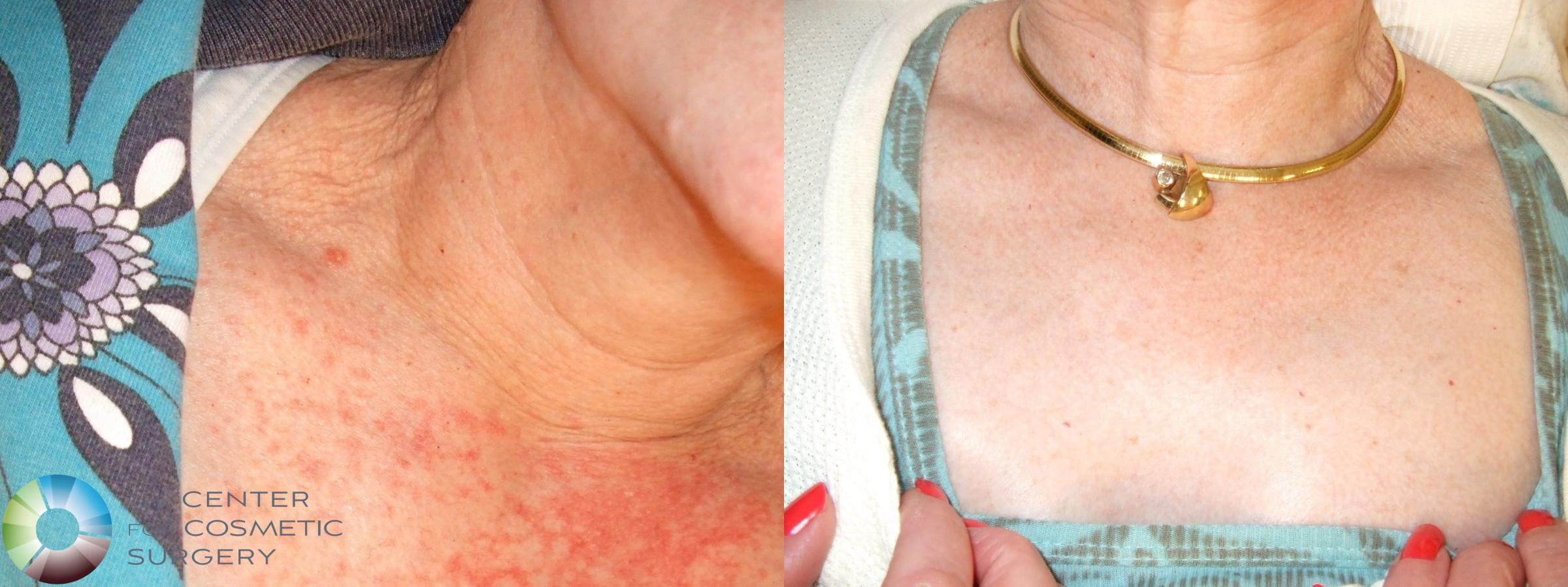Chemical Peels/Microdermabrasion Case 264 Before & After View #1 | Golden, CO | The Center for Cosmetic Surgery