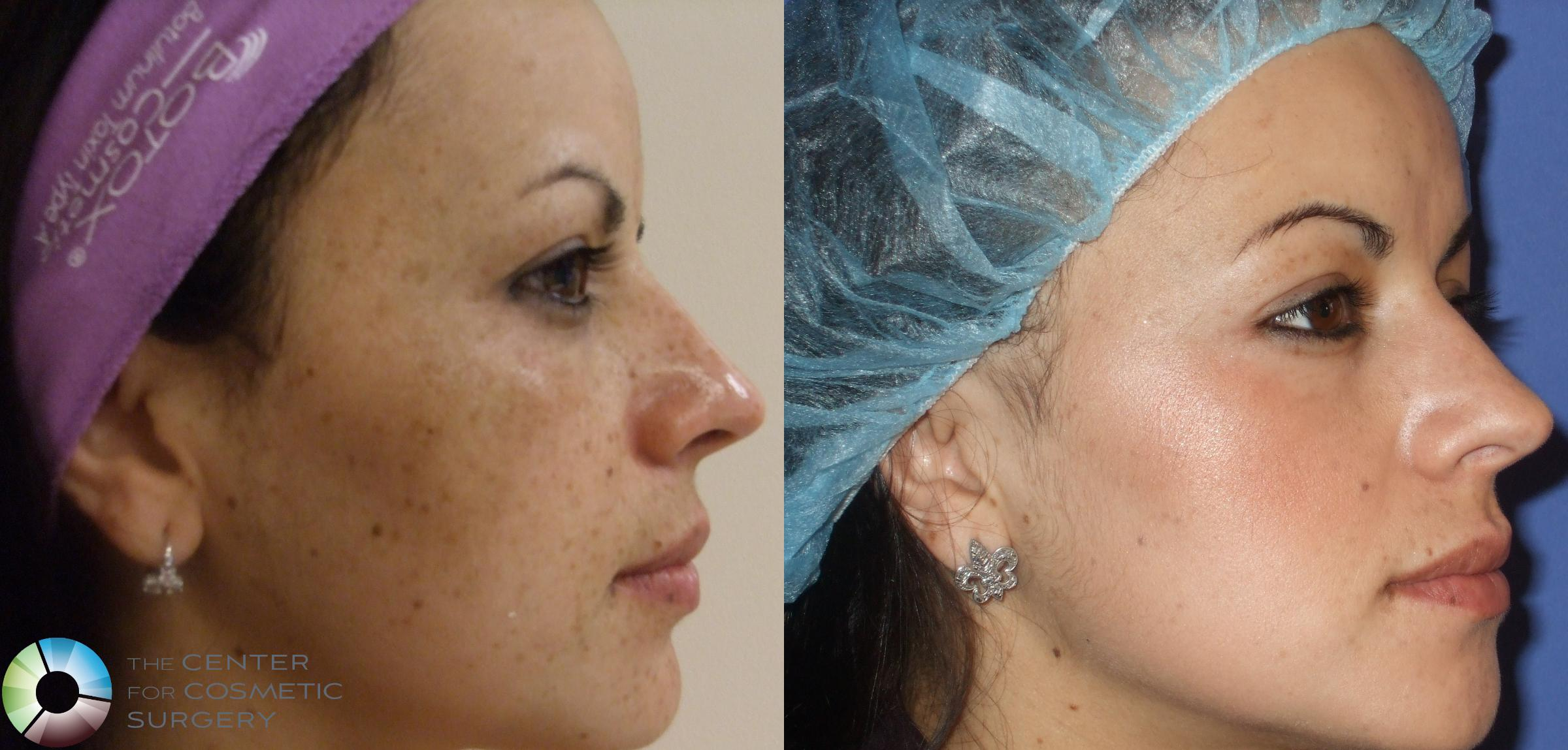 Skin Care Products Case 295 Before & After View #1 | Golden, CO | The Center for Cosmetic Surgery