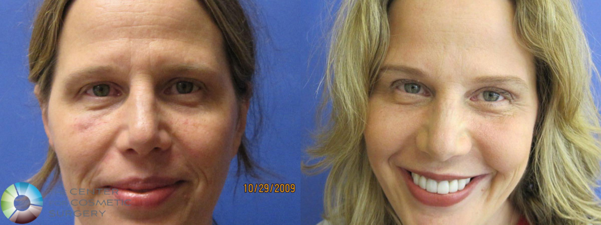 Dermal Fillers Case 383 Before & After View #1 | Golden, CO | The Center for Cosmetic Surgery