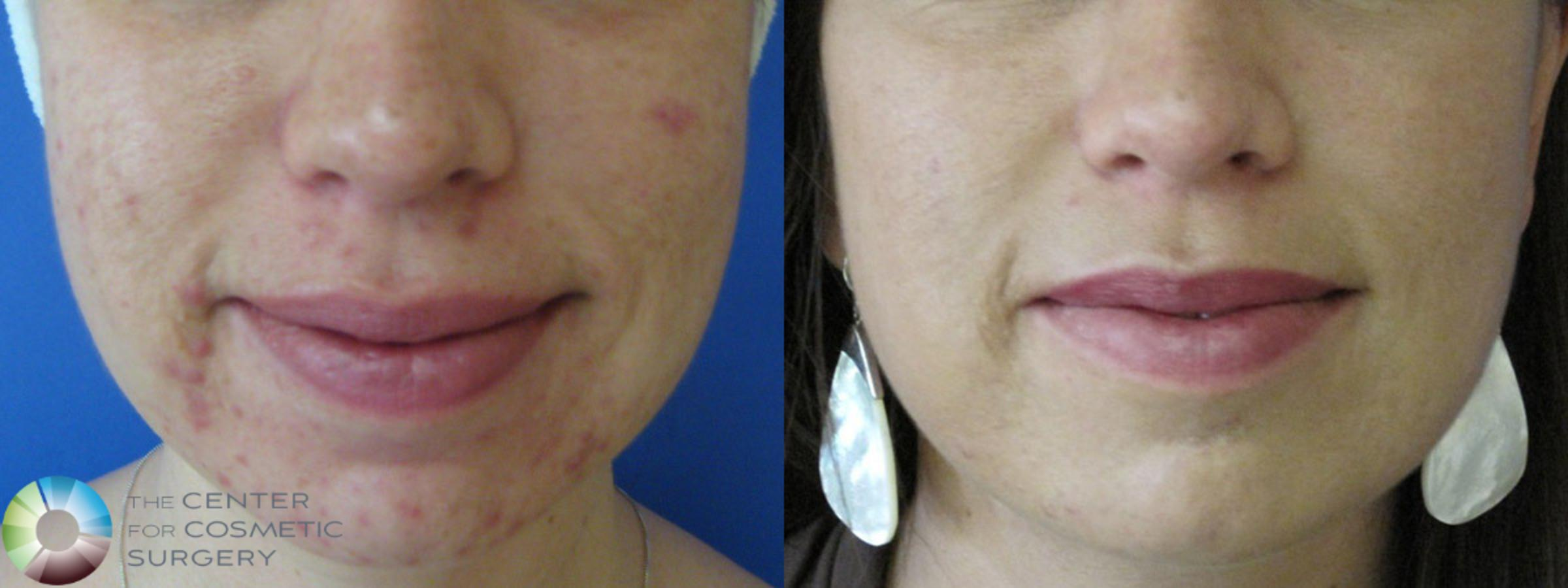 Chemical Peels/Microdermabrasion Case 386 Before & After View #1 | Golden, CO | The Center for Cosmetic Surgery