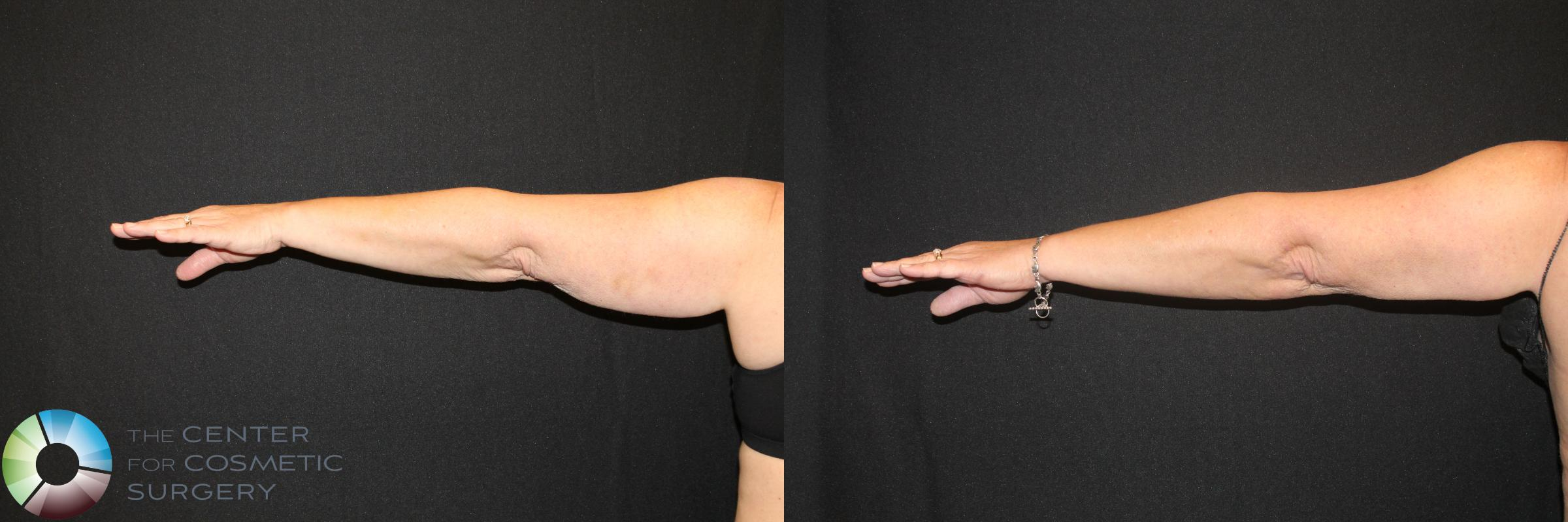 CoolSculpting Case 723 Before & After View #1 | Golden, CO | The Center for Cosmetic Surgery