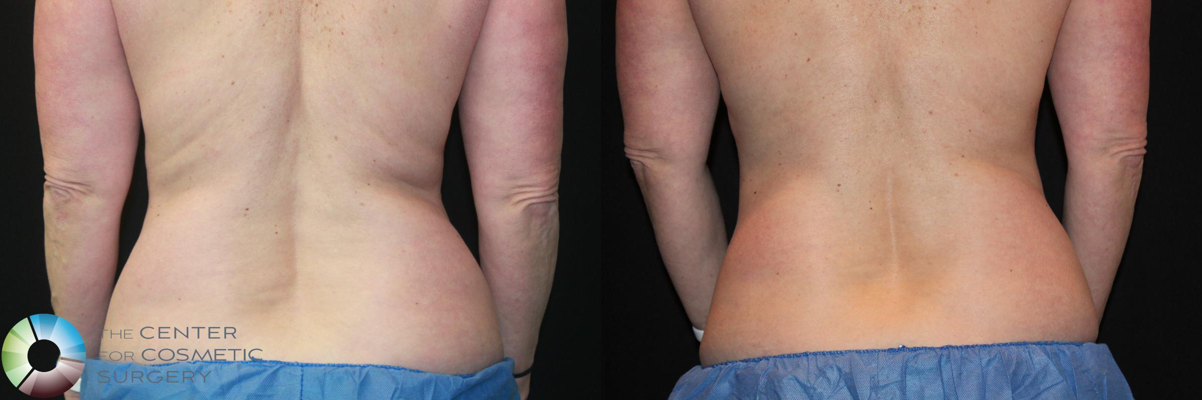 CoolSculpting Case 724 Before & After View #1 | Golden, CO | The Center for Cosmetic Surgery