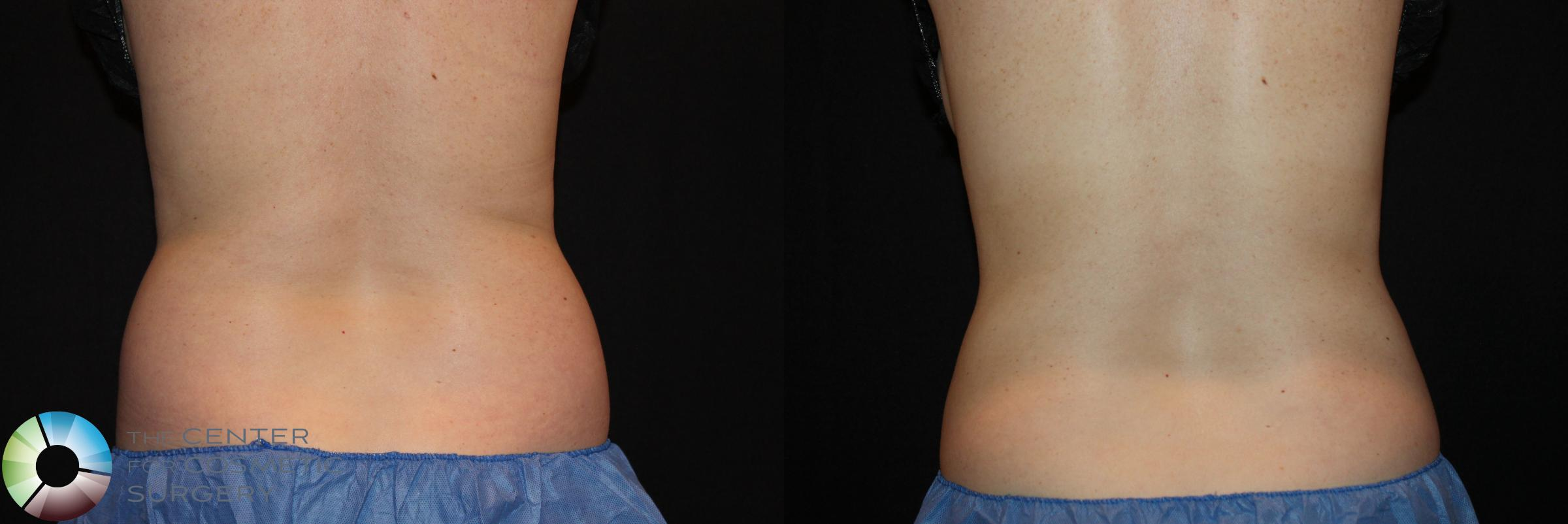 CoolSculpting Case 726 Before & After View #2 | Golden, CO | The Center for Cosmetic Surgery