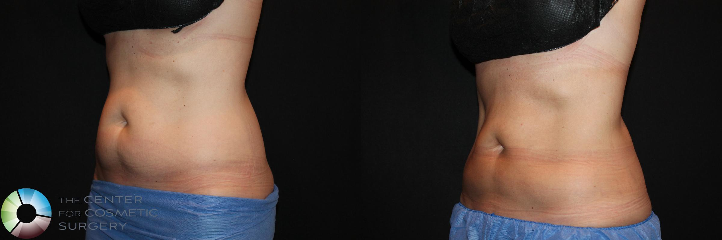 CoolSculpting Case 729 Before & After View #1 | Golden, CO | The Center for Cosmetic Surgery