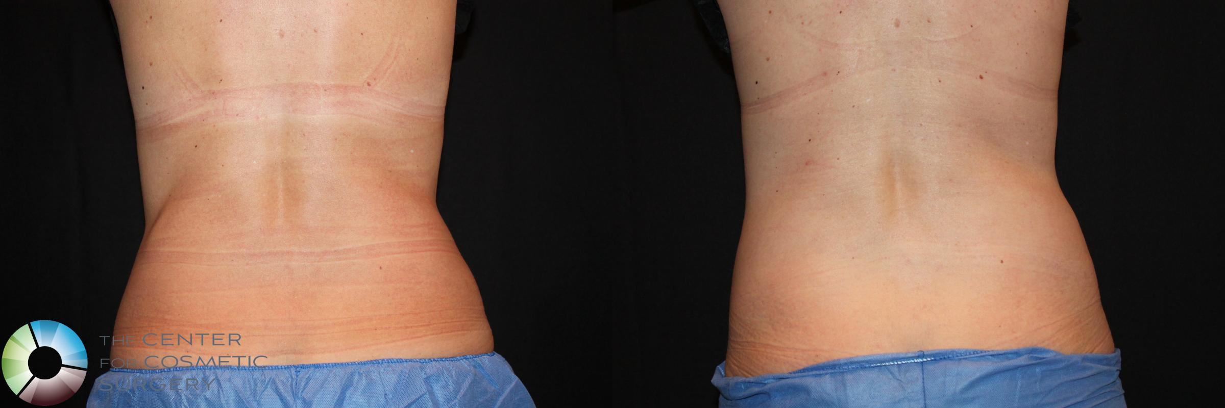 CoolSculpting Case 729 Before & After View #2 | Golden, CO | The Center for Cosmetic Surgery