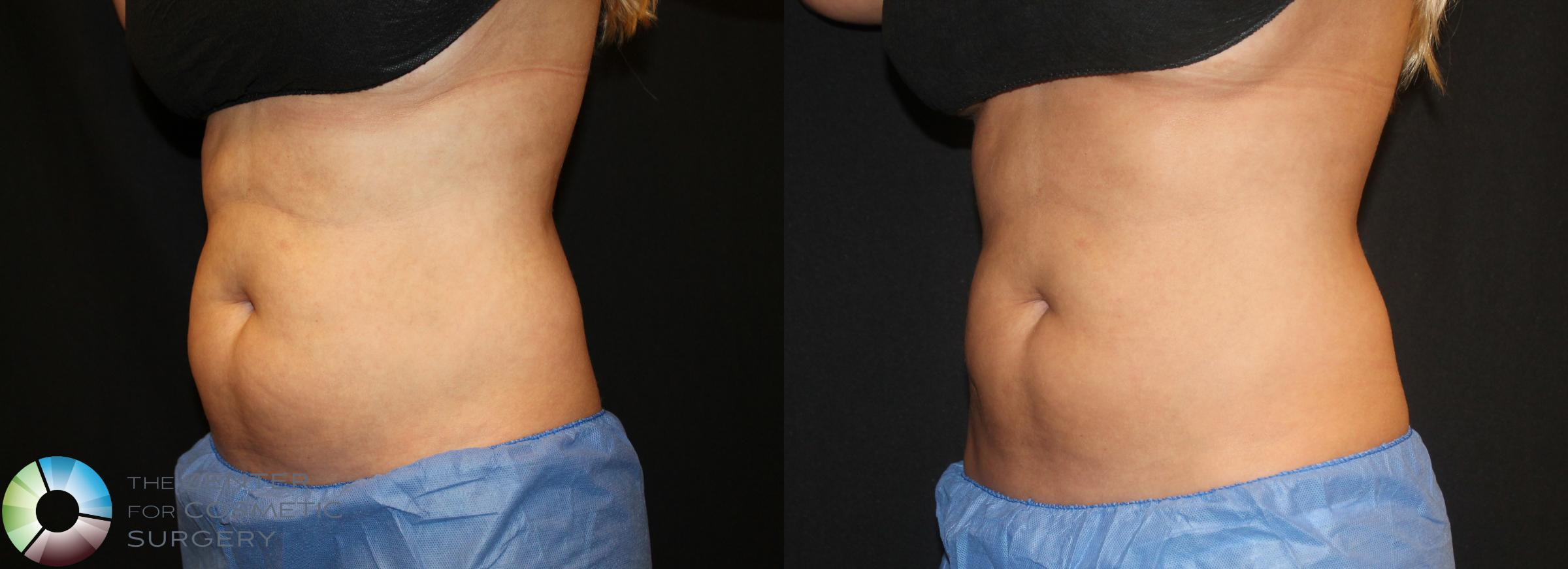 CoolSculpting Case 730 Before & After View #1 | Golden, CO | The Center for Cosmetic Surgery