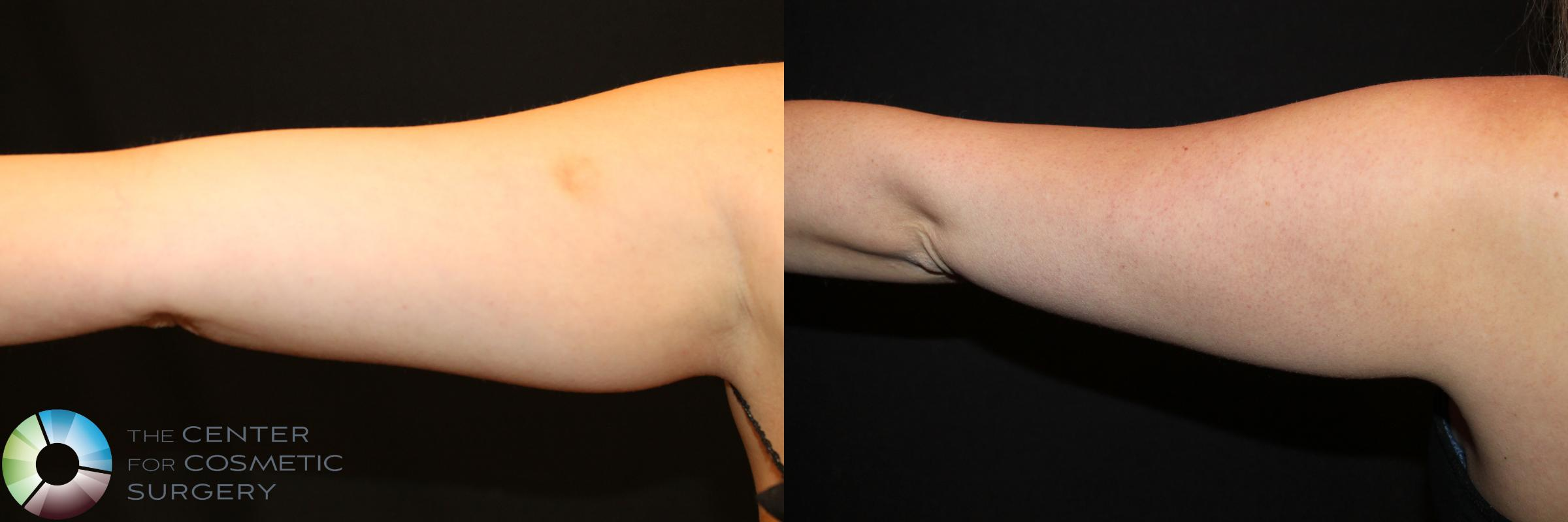 CoolSculpting Case 731 Before & After View #1 | Golden, CO | The Center for Cosmetic Surgery
