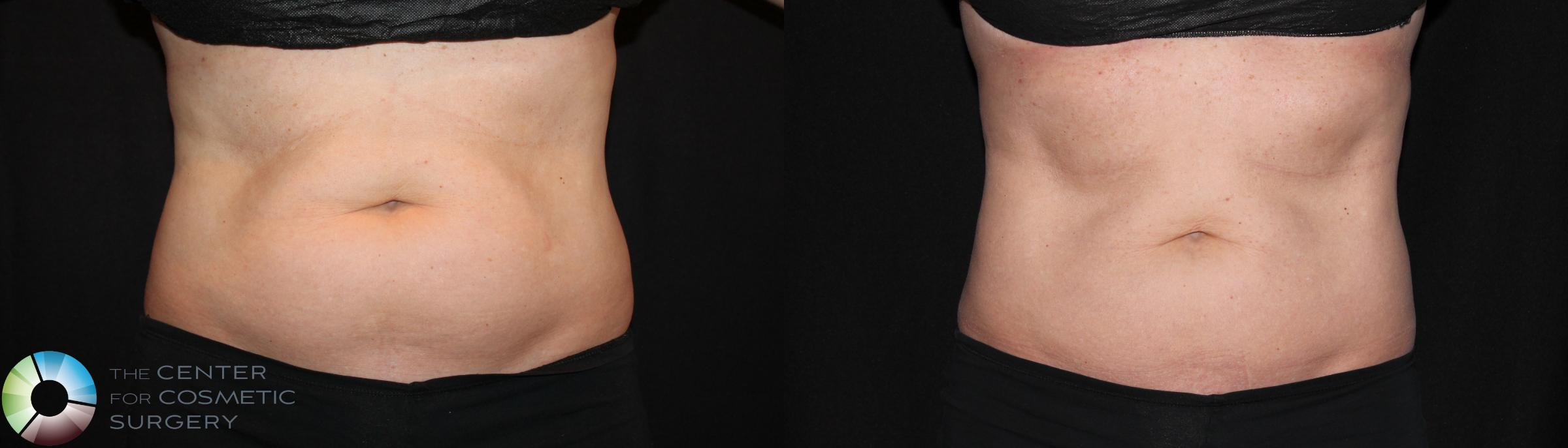 CoolSculpting Case 735 Before & After View #1 | Golden, CO | The Center for Cosmetic Surgery