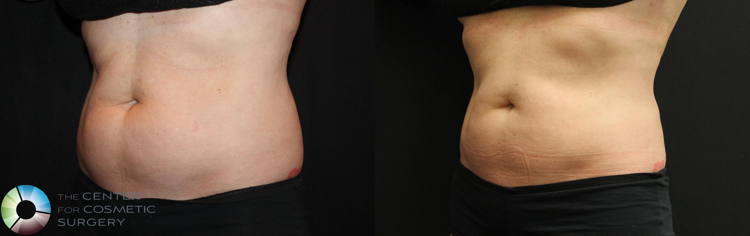 CoolSculpting Case 735 Before & After View #2 | Golden, CO | The Center for Cosmetic Surgery