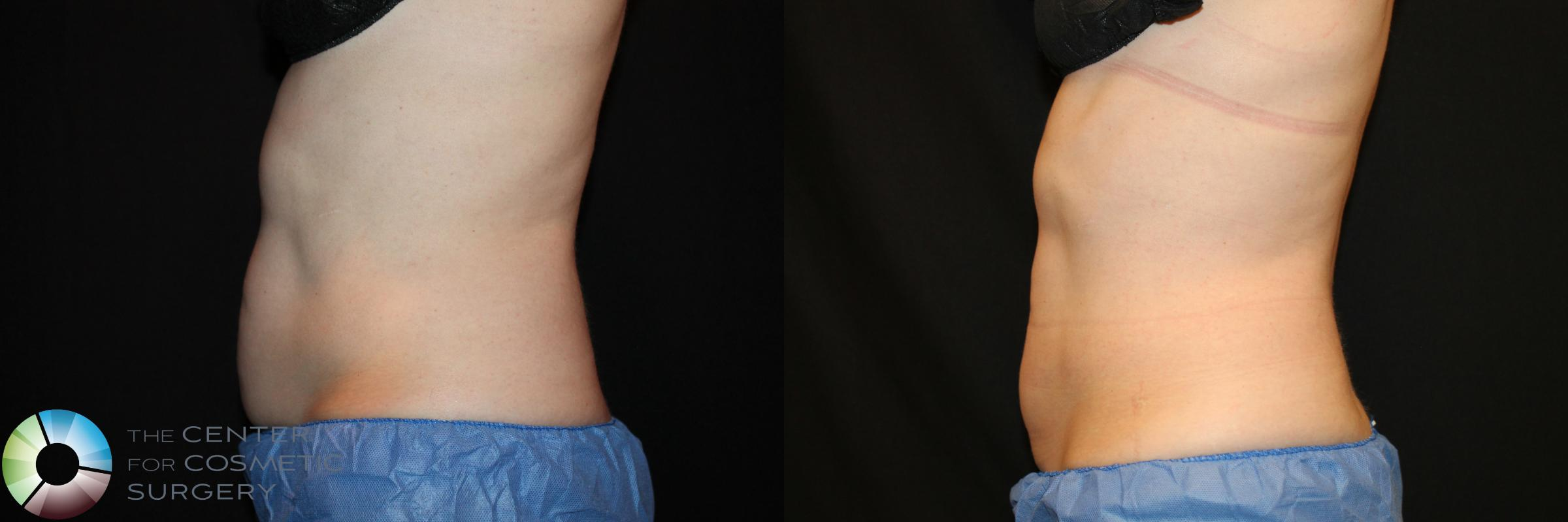 CoolSculpting Case 736 Before & After View #1 | Golden, CO | The Center for Cosmetic Surgery