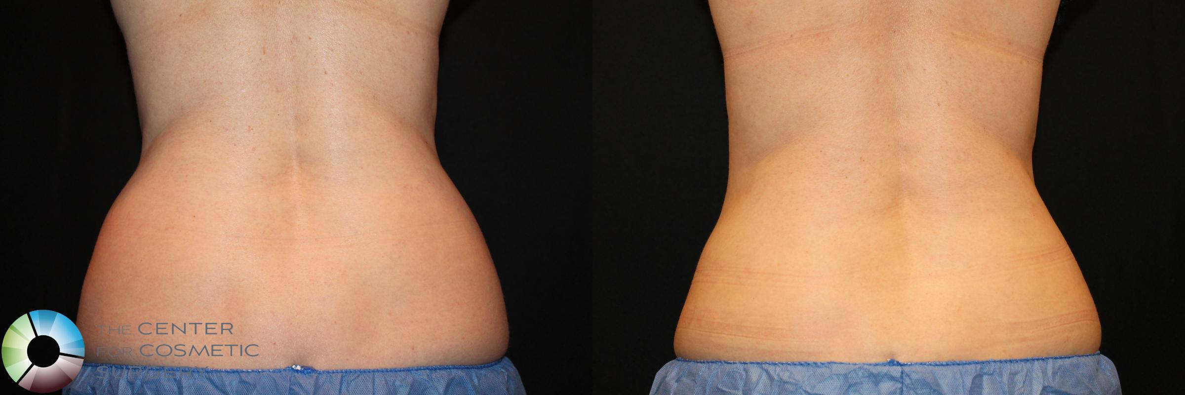 CoolSculpting Case 737 Before & After View #1 | Golden, CO | The Center for Cosmetic Surgery