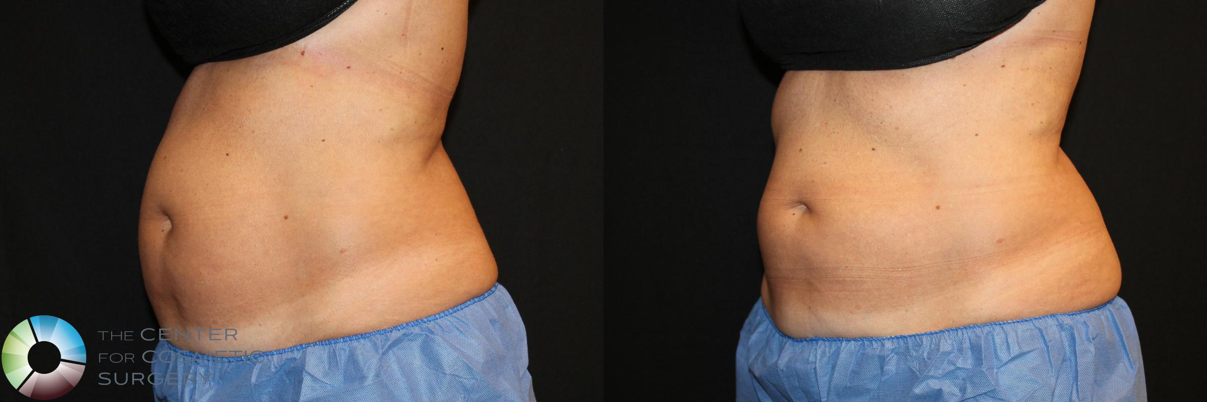 CoolSculpting Case 738 Before & After View #1 | Golden, CO | The Center for Cosmetic Surgery