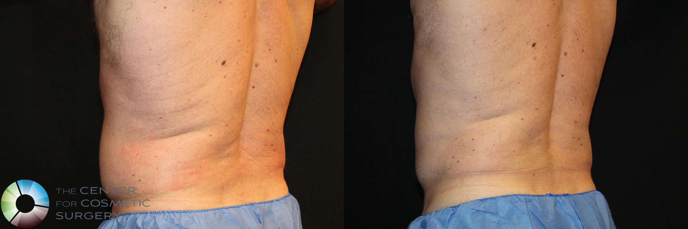 CoolSculpting Case 746 Before & After View #1 | Golden, CO | The Center for Cosmetic Surgery