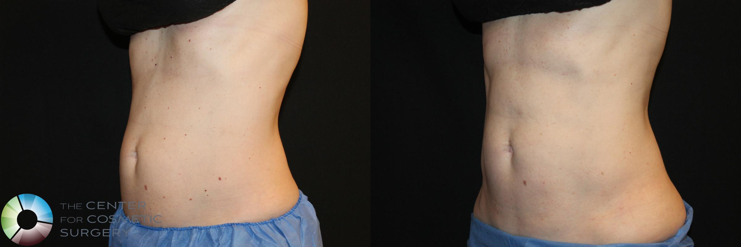 CoolSculpting Case 752 Before & After View #1 | Golden, CO | The Center for Cosmetic Surgery