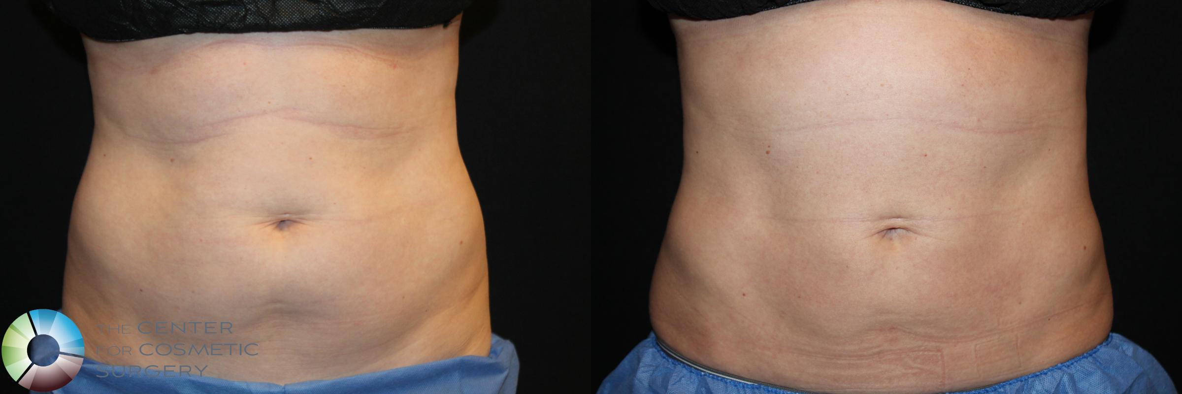 CoolSculpting Case 764 Before & After View #1 | Golden, CO | The Center for Cosmetic Surgery