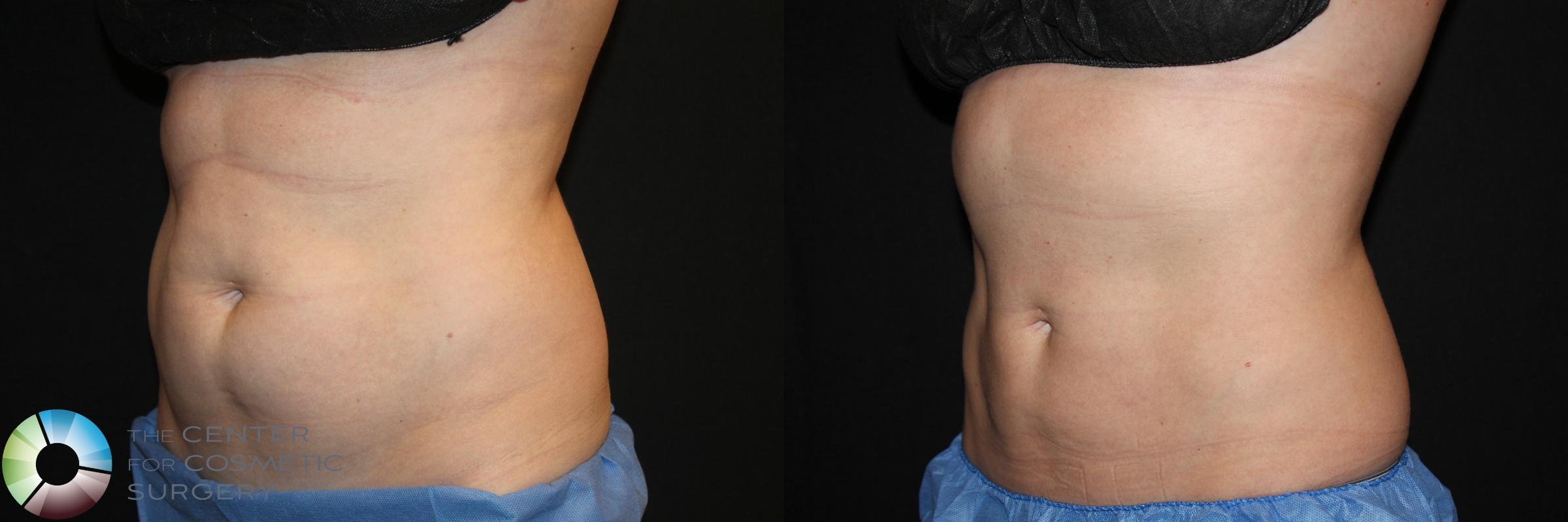 CoolSculpting Case 764 Before & After View #2 | Golden, CO | The Center for Cosmetic Surgery