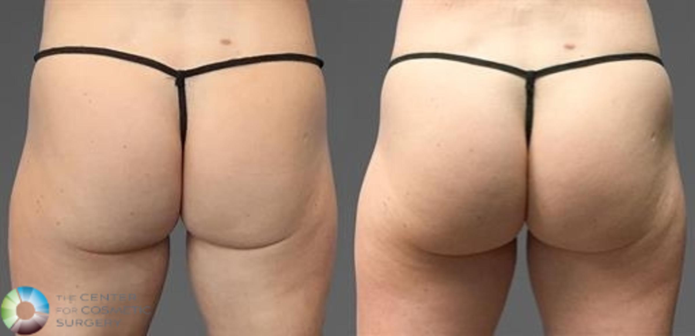 CoolTone Case 11566 Before & After Back | Golden, CO | The Center for Cosmetic Surgery