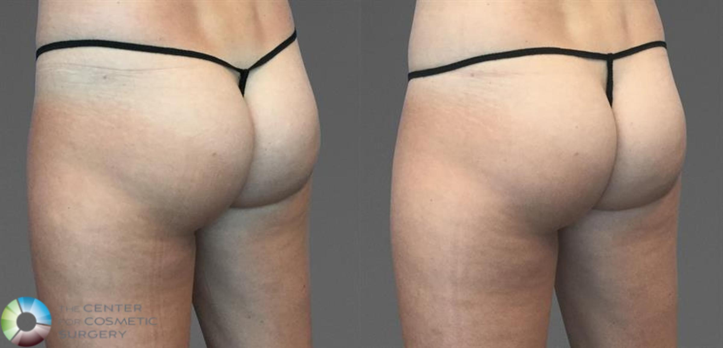 CoolTone Case 11573 Before & After Back | Golden, CO | The Center for Cosmetic Surgery