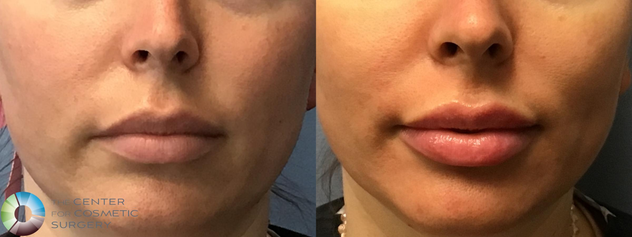 Dermal Fillers Case 11587 Before & After Front | Golden, CO | The Center for Cosmetic Surgery