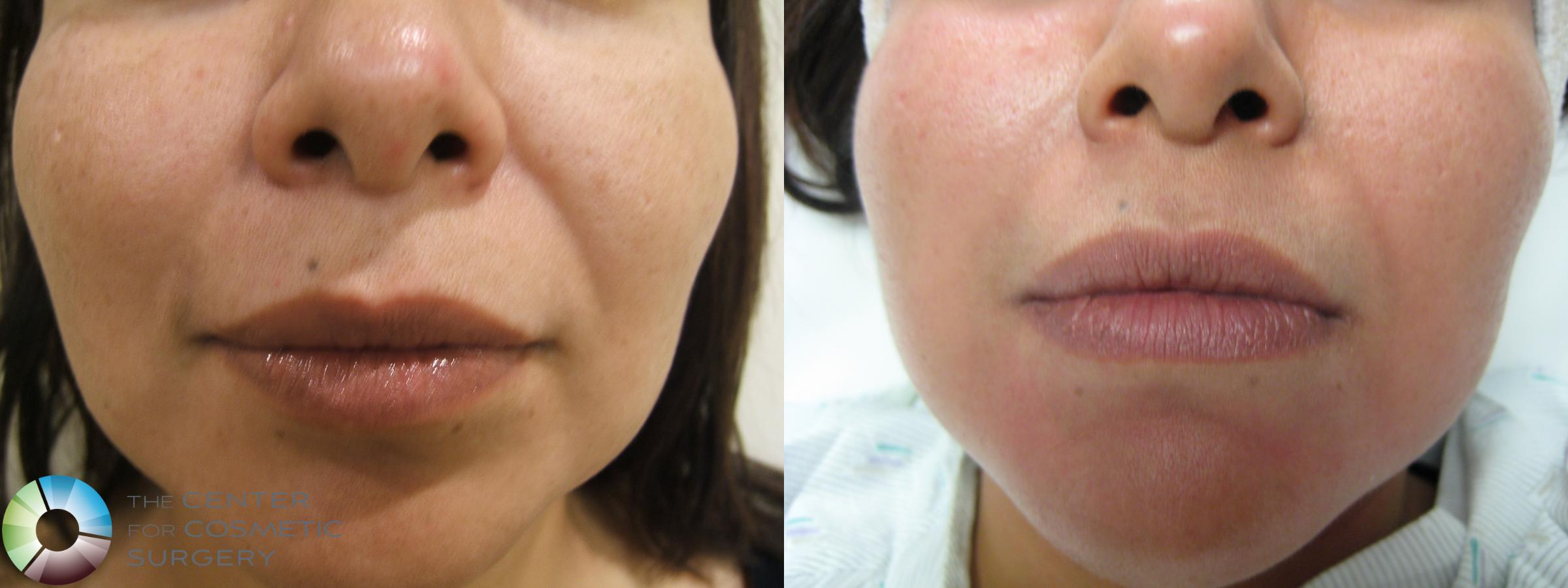 Dermal Fillers Case 282 Before & After View #1 | Golden, CO | The Center for Cosmetic Surgery